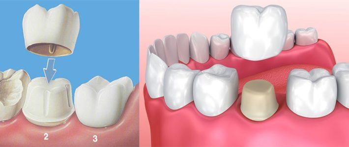 Основная информация, которую вы должны знать о зубных коронках